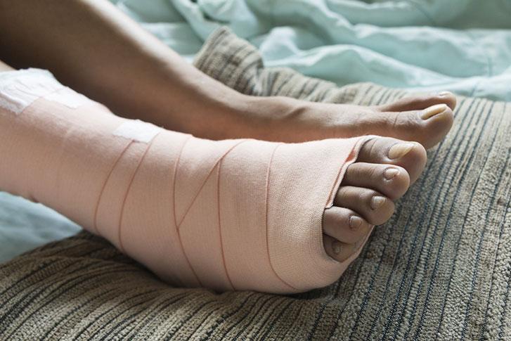 work-injury-right-foot.jpg